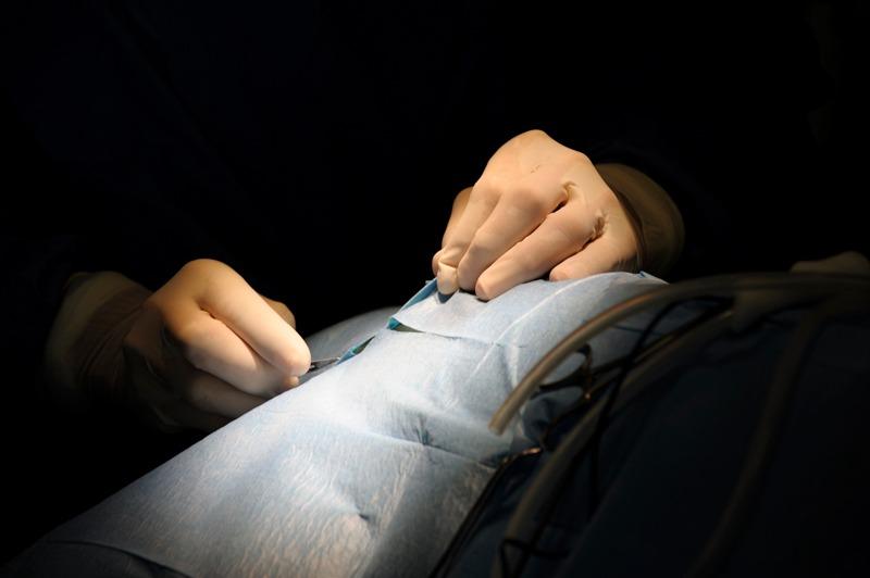 Préparation chirurgicale