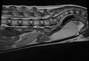 Spondylodiscite et empyème sous dural